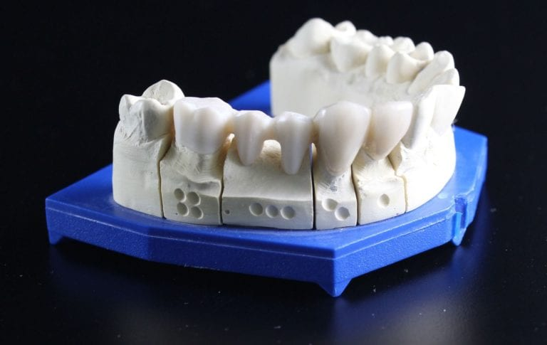 Reasons to Get a Dental Crown for Children