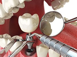Dental Implants Landing Page 6