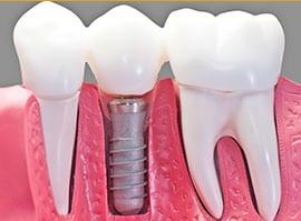 Dental Implants Landing Page 4