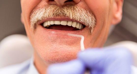 Dental Implants Landing Page 8