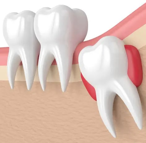 Digital graphic of impacted wisdom tooth before Wisdom Teeth Removal Hamilton