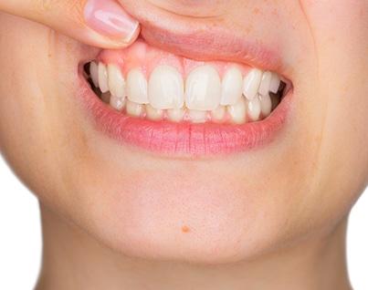 Restorative Dentistry 1