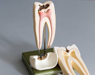 Restorative Dentistry 4
