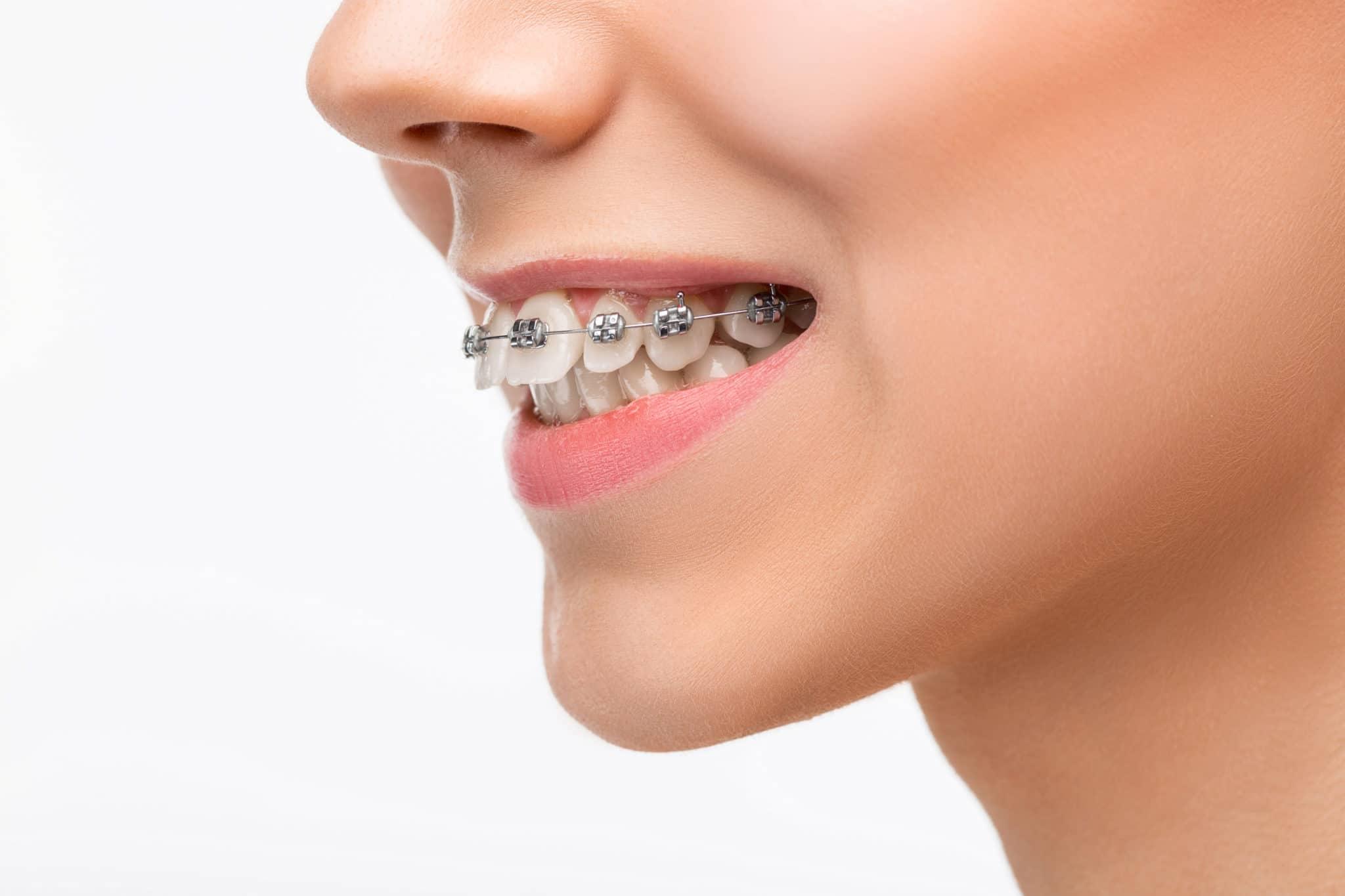 Orthodontics 8