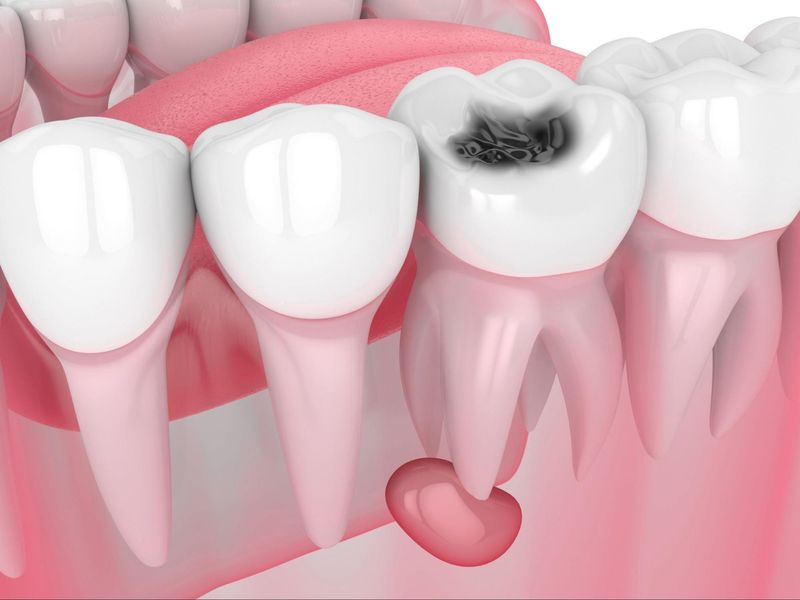 How To Tell If You Have A Tooth Infection 1